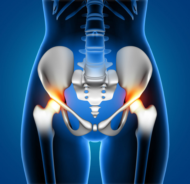 Why Sciatica Usually Occurs To Females